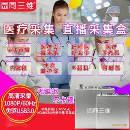 USB3.0 SDI/VGA/DVI/HDMI 高清医疗直播视频采集盒卡手术远程会诊