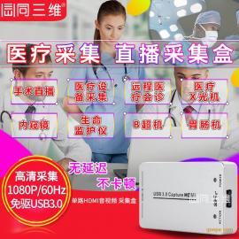 USB3.0 HDMI高清医疗直播视频采集盒 手术 彩B超 远程会诊 内窥镜