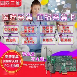 DVI/VGA/HDMI高清医疗视频采集卡手术网络直播远程医疗会诊内窥镜