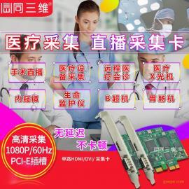 HDMI/DVI高清音视频采集卡医疗影像工作站B超彩超CT 腹腔镜内窥镜