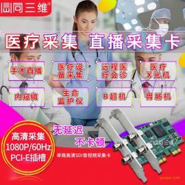 SDI高清医疗直播视频采集卡医疗直播录制医疗影像B超彩超CT 腹腔