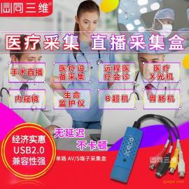 USB标清CVBS医疗手术直播视频采集盒医疗影像