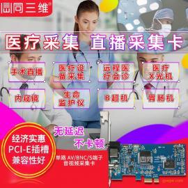 标清AV医疗直播视频采集卡手术B超彩超图像录制内窥镜