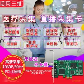 DVI/VGA/SDI/HDMI高清医疗手术图像录制网络会诊
