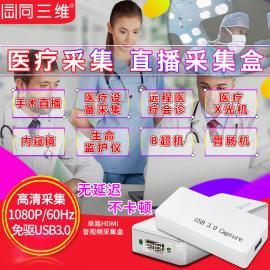 USB3.0免驱高清HDMI采集盒卡医疗直播录制手术网络