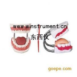 #牙护理保健模型*