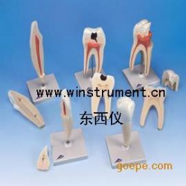 #经典牙齿模型系列(5种模型)*